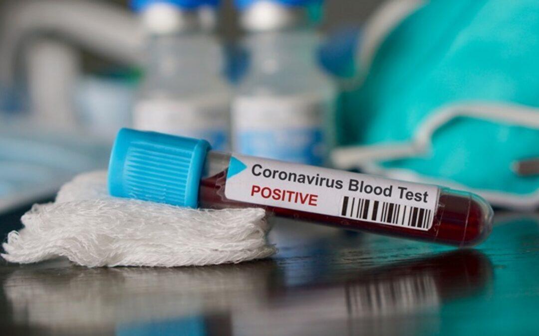 Új PCR-gyorstesztet fejlesztettek Magyarországon