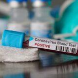 Ha a tesztelést háziorvos rendeli el, ingyenes a teszt